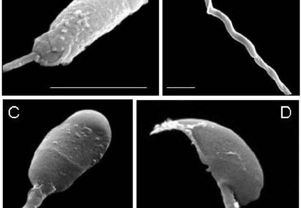 آزمایش اسپرم normal morphology