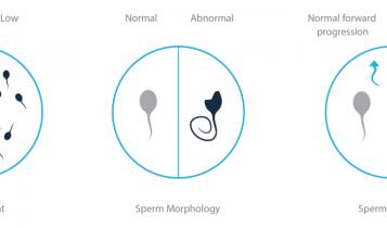 مورفولوژی اسپرم