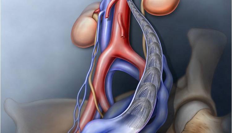 درمان واریکوسل با آمبولیزاسیون