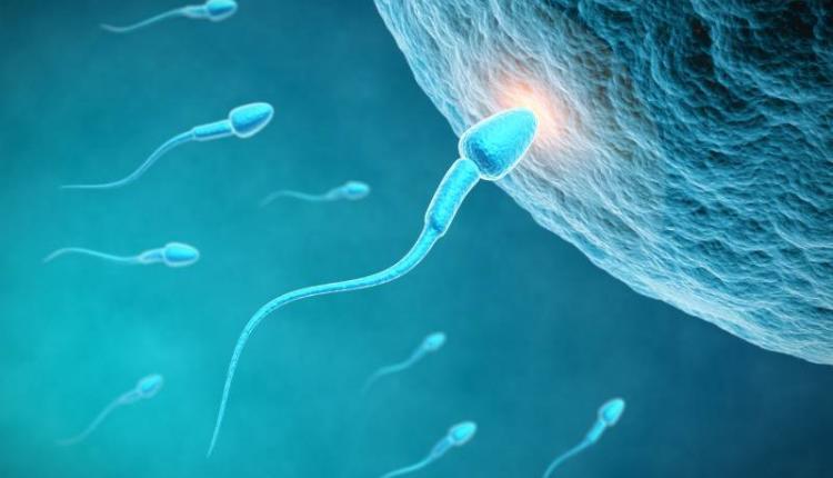 واریکوسل و کاهش اسپرم